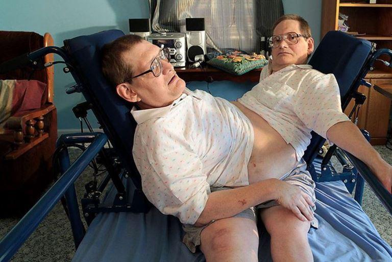 Morrem aos 68 anos, gêmeos siameses mais velhos do mundo